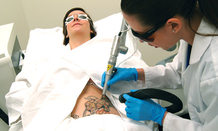 {LTR – Laser Tattoo Removal Course}